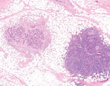 In Crc Distinguishing Tumor Deposit From Lymph Node Cap Today 7 1 2020